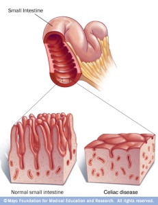 Celiac Disease Illustration